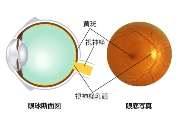 眼球断面図と眼底写真で黄斑の位置