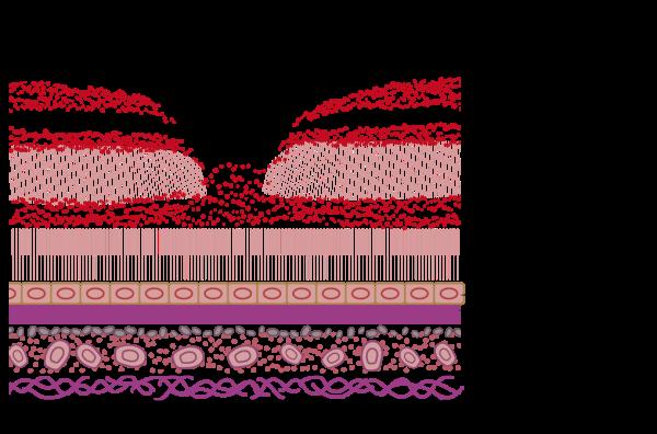 加齢黄斑変性,ブルーベリー,サプリメント,網膜,30代,遺伝子解析,ルテイン,視力,若者,近視,紫外線,眼球,ゼアキサンチン,ブロッコリー,亜鉛,副作用,パプリカ,おすすめ,闘病,ケール,青汁,失明,緑内障,ブログ (2)